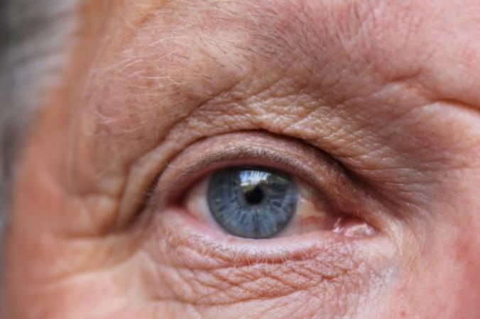 [A close-up of a man's eye]