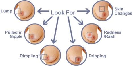 lump-in-breast-cancer