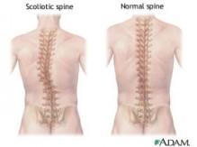 scoliosis-300x224