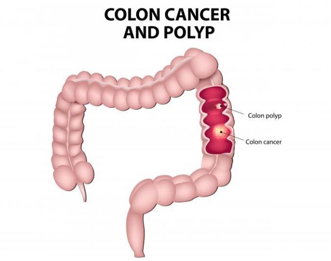 [colon cancer]