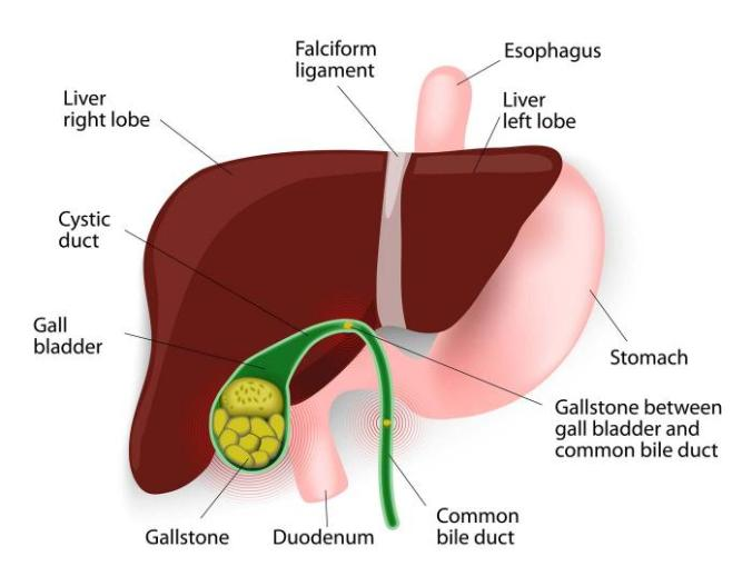 Image of gallstone affecting the liver.