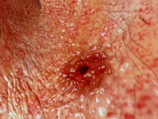 A peptic ulcer.